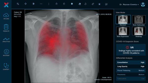 Spitalele sibiene vor folosi un soft bazat pe inteligenţă artificială, util şi pentru screening-ul pentru COVID-19