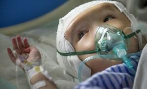 copil operat cap